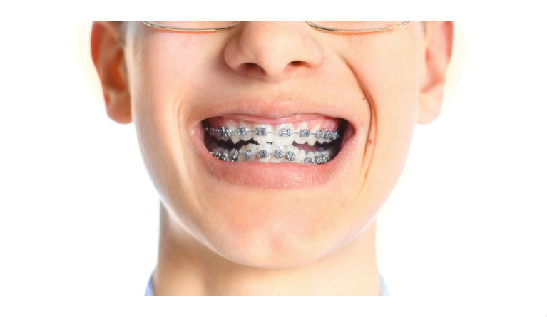 Foods To Eat When First Getting Braces