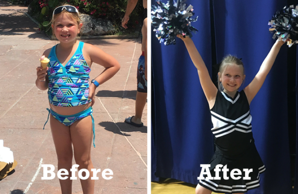 Child Weight Loss Success Story: Kacie, 7 years old, drops a significant 8 BMI points and helps her parents lose pounds, too!**