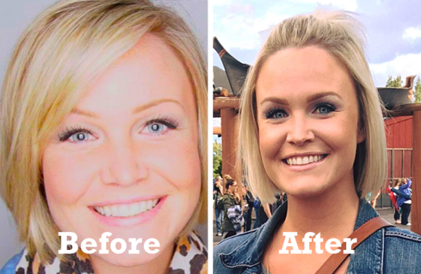 Adult Weight Loss Success Story: When bariatric surgery failed for Lindsay, she found success she was looking for with Kurbo.**
